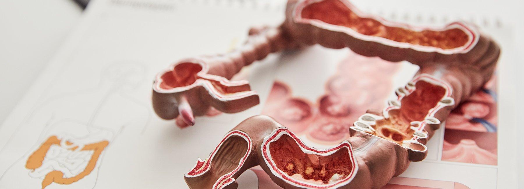 Proktologie - Gastroenterologie Fontenay